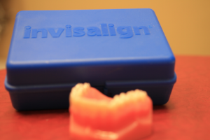invisalign without metal wires