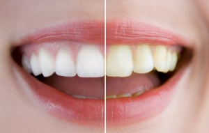 teeth whitening before and after picture