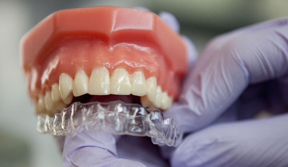 clear braces for adults Fairfax, VA