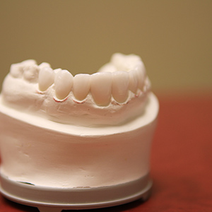 teeth-mold