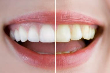 before and after teeth whitening comparison